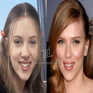 Rinoplastia Scarlett Johansson