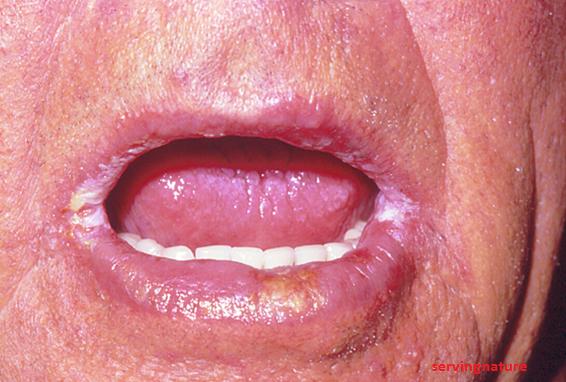 micosis bucal sintomas de diabetes