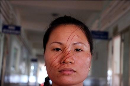 """Gia Lai: Đình chỉ điều tra vụ """"người phụ nữ bị hàng xóm rạch mặt"""""""