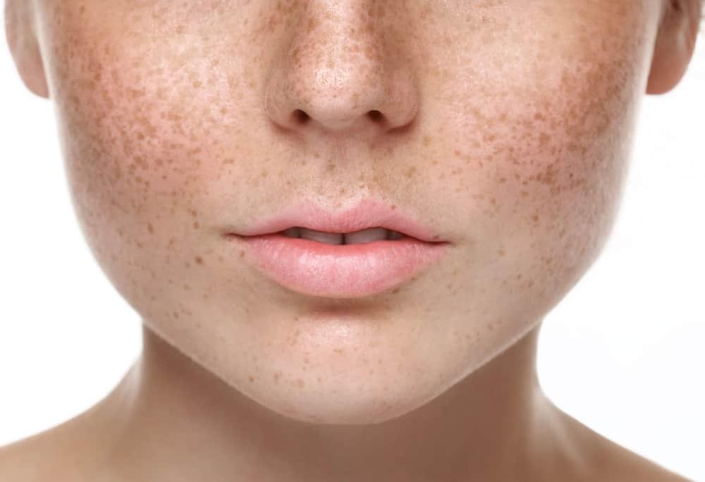Sunan Cara Menghilangkan Bintik Di Wajah Tapi Bukan Jerawat Secara Alami
