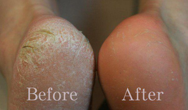 How to get rid of dry skin using home remedies?