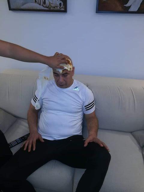 اصابة حسام حسن في مباراة المصري