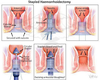 obat kapsul salep ambeien ampuh menghilangkan benjolan di anus