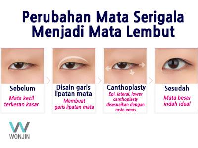 Prosedur operasi plastik mata