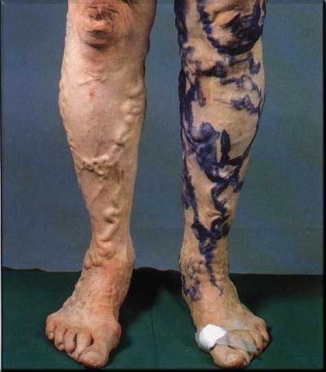 tortuous varicose veins
