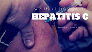 What is hepatitis C: Symptoms, Treatment, Prevention, Transmission
