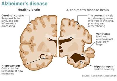 Cegah Dan Rawat Penyakit Alzheimer (Nyanyuk) Sebelum Terlambat...Boleh Ke?
