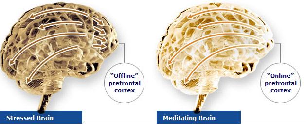 La meditación puede prevenir el envejecimiento del cerebro.