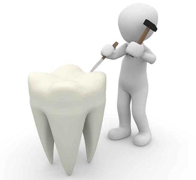 Cara Menjaga Agar Gigi Tidak Berlubang Secara Alami
