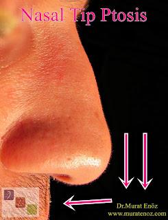 Nasal Tip Ptosis
