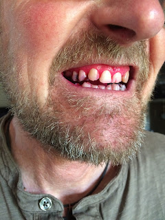 man with beard after using disclosing tablets