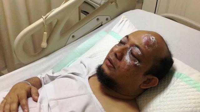 Innalillahi, Sepupu Calon Gubernur Jakarta Ini Disiram Air Keras, Netizen Kaitkan dengan Kasus Megakorupsi ini