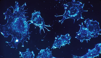 Ilustrasi sel kanker