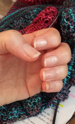 Using Biotin & Nailiques to grow my fingernails.