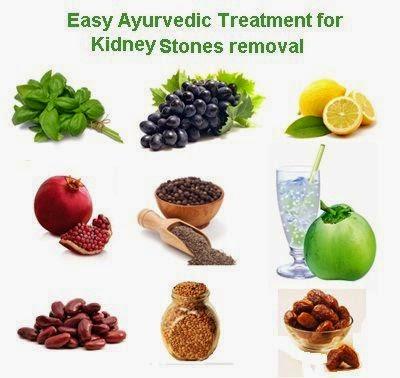 Best Ways To Cure Kidney Stones Home Remedies For Kidney Disease
