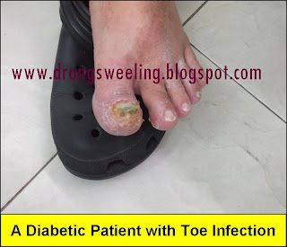 Tcm News A Diabetic Patient With Toe Infection