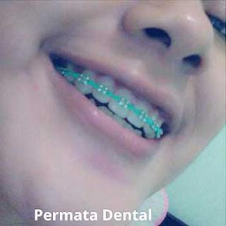 pasang behel gigi bali| pasang behel gigi denpasar| pasang behel gigi kute| pasang behel gigi nusadua | pasang behel gigi badung | pasang behel gigi gatsu| pasang behel gigi jimbaran | pasang behel gigi murah | pasang behel gigi mudah | pasang behel gigi cepat | pasang behel gigi aman | pasang behel gigi atas | pasang behel gigi bawah | pasang behel gigi atas bawah | pasang behel fashion | pasang behel gigi | pasang behel gigi gingsul | pasang behel gigi cantik | pasang behel gigi perawatan | pasang behel ahli gigi | pasang behel gigi berlubang | pasang behel gigi renggang | gambar pasang behel gigi | foto pasang behel gigi | pasang behel gigi kelinci | pasang behel gigi lepas pasang | pasang behel gigi promo | behel gigi untuk gigi tonggos | pasang behel elastis | pasang behel gigi ompong | pasang behel gigi hiasan| gambar foto trand behel bracket kawat gigi fashion