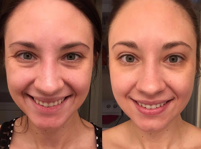 TruSkin Naturals Vitamin C Serum Is an Amazon Customer Favorite see the amazing before-and-after pictures