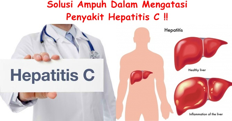 Obat Tradisional Tuntaskan Hepatitis C