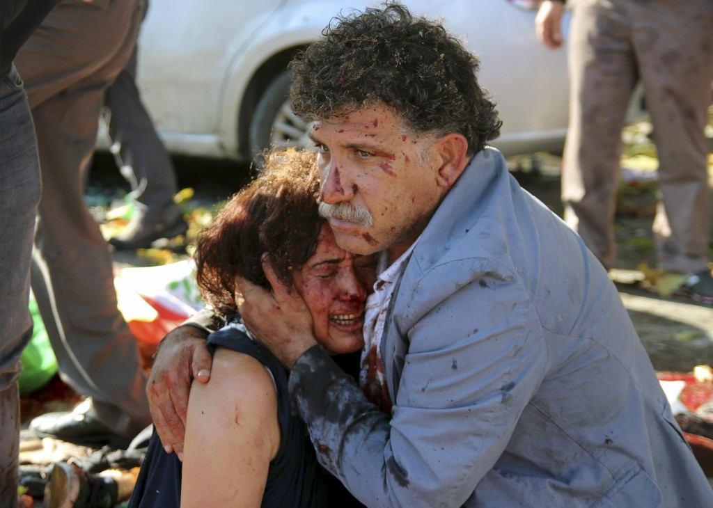 70 Of The Most Touching Photos Taken In 2015 - A man hugs an injured woman after an explosion killing 97 during a peace march in Ankara, Turkey.