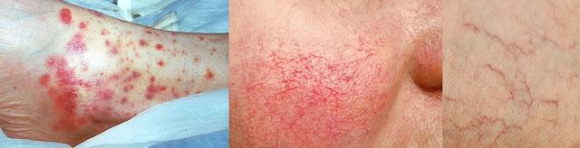 VIVIR CON LUPUS - Síntomas principales del Lupus  / www.facebook.com/ElLibroGordoDeLaVida
