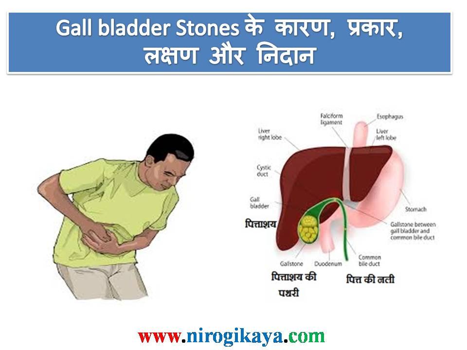 Gallbladder Stone Diet In Hindi - consultancygala