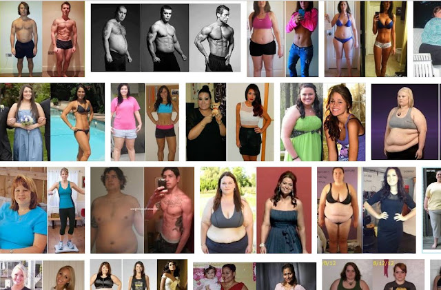 Medshape Weight Loss Clinic & Extreme weight loss before and after