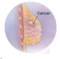 All About Breast Cancer | Causes, Symptoms, Prevention And Related Information