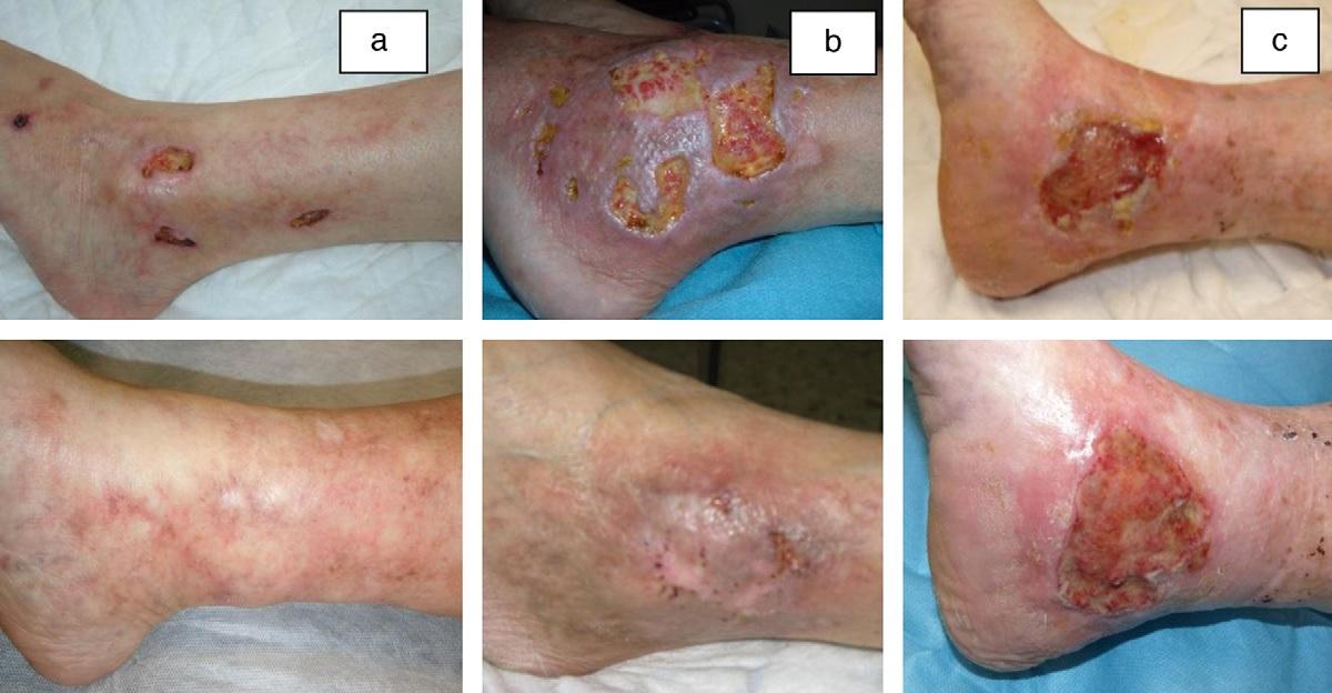 Sildenafilo en úlceras cutáneas crónicas refractarias a otros ...
