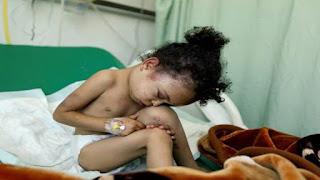 جرائم السعودية في اليمن اخرها جرح الطفله بثينة الريمي وقتل عائلتها  - الطفوله المذبوحة