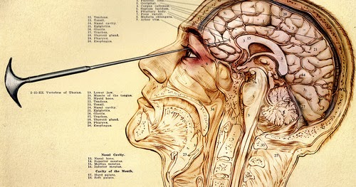 lobotomy essays Prefrontal lobotomy is the most common type of psychosurgery (surgery on the brain to relieve a disorder) in the prefrontal lobotomy a pick-like instrument is used to sever the nerve pathways that connect the prefrontal lobes to the thalamus.