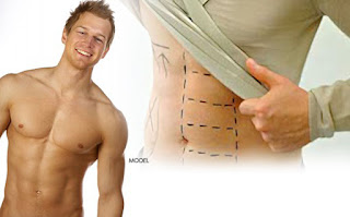 Liposuction / Abdominal etching by Dr Srinjoy Saha betters abdominal shape and adds six pack definition.