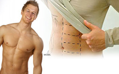 Best Cosmetic Plastic Surgery India Kolkata: Liposuction / Abdominal etching by Dr Srinjoy Saha