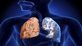 kronik obstruktif akciğer hastalığı nedir