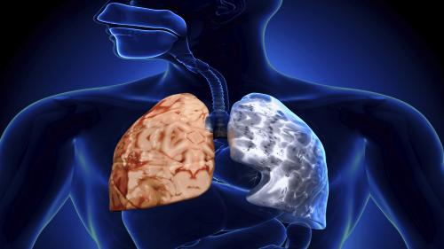 Kronik Obstruktif Akciğer Hastalığı Nedir?