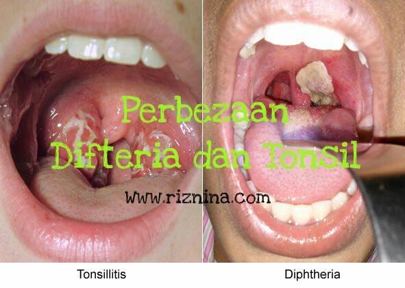 5 Perbezaan Difteria dan Tonsil