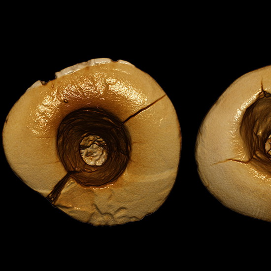 Laporan Penelitian Pemburu-pengumpul Zaman Batu Mengobati Sakit Gigi Pakai Alat Batu dan Aspal