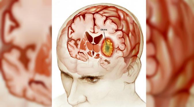 14 Makanan Yang Baik Untuk Mencegah Kanker Otak
