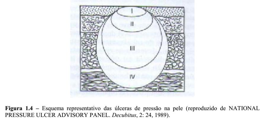 Luiz botelho mdico fisiatra o sistema de classificao de escaras mais aceito o proposto pelo conselho de cuidados de escaras18 fig 14 fandeluxe Image collections
