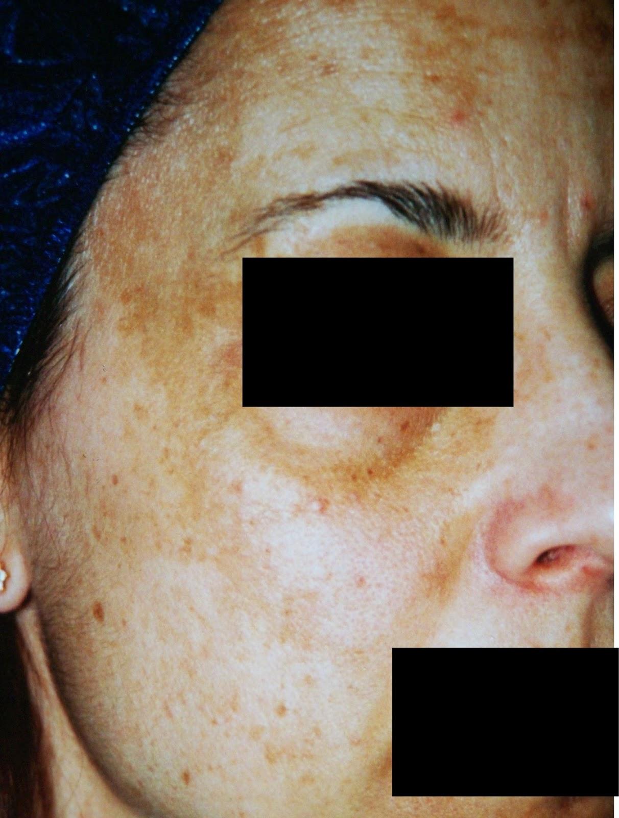 I pacchi di faccia di decolorazione dopo 25