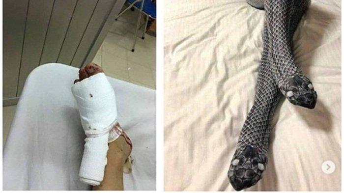 Viral, Gara-Gara Model Stoking Bersisik dan Berkepala Ular, Wanita Ini Terpaksa Masuk Rmah Sakit