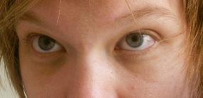 gejala diabetes lapar lelah mata kabur