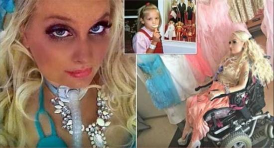صور| منذ طفولتها أصيبت بالشلل...وبعد 17 سنة هذا ما أصبحت عليه!