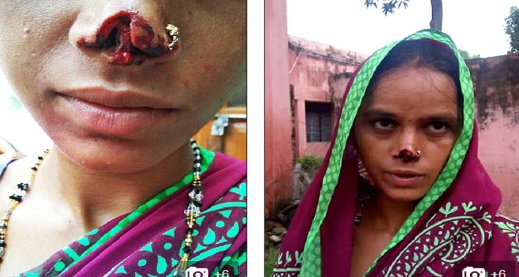هندي يقطع أنف زوجته و يهرب به و السبب أغرب من الخيال