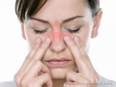 Cara Mengatasi Sinusitis Dengan Cepat