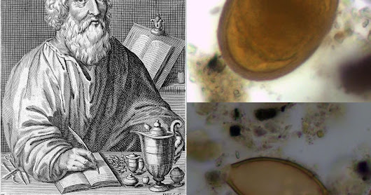 Ancient Poo Is The First-Ever Confirmation Hippocrates Was Right About Parasites