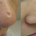 You need just 10 seconds a day and all scars will disappear from your face