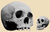 Comparación tamaño cráneo humano gigante vs cráneo normal