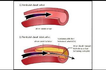Mengenal Penyakit Jantung Koroner dan Cegahlah Sejak Dini