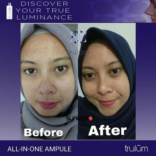 Jual Serum Penghilang Jerawat Trulum Skincare Loa Janan Ilir Kota Samarinda